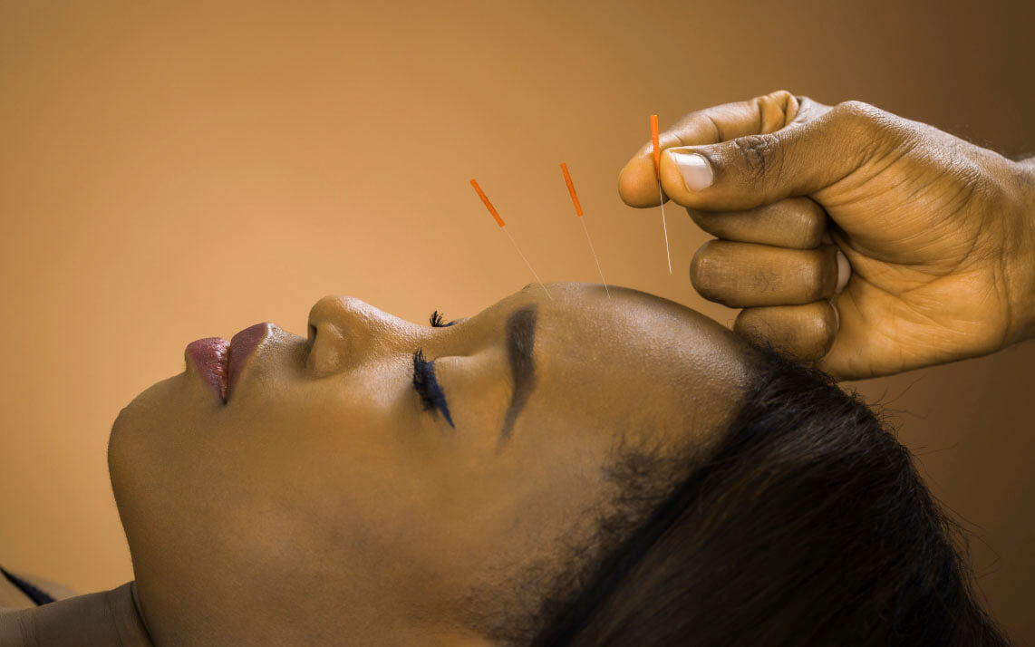 Find True Pain Relief with Acupuncture